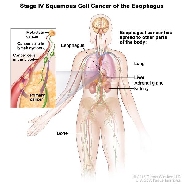 Ung thư thực quản giai đoạn cuối có khả năng di căn rộng đến các cơ quan ở xa như gan, phổi, thận...