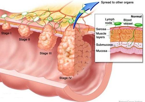 Ung thư trực tràng được chia làm 4 giai đoạn.