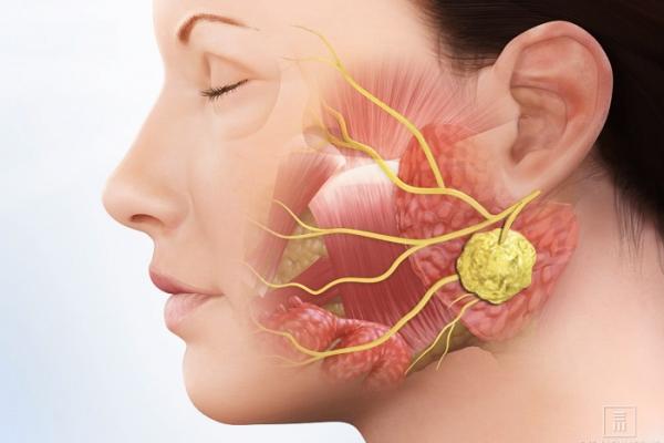 U tuyến nước bọt chiếm khoảng 2 – 4% các ung thư vùng đầu cổ