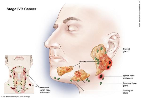 Ung thư tuyến nước bọt giai đoạn IVB