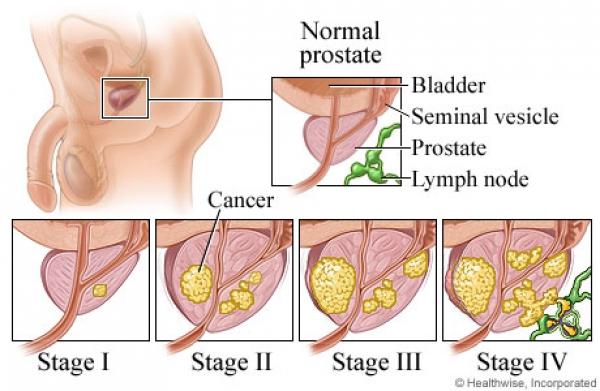 Các giai đoạn ung thư tuyến tiền liệt