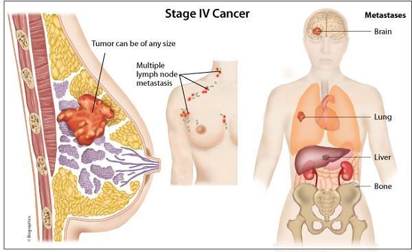 Ung thư vú là bệnh nguy hiểm thường gặp ở chị em phụ nữ