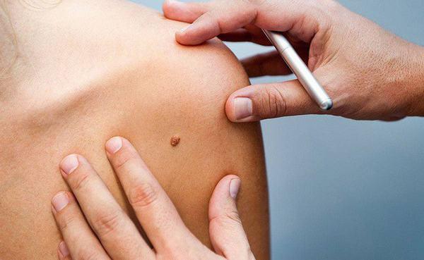 Nốt ruồi ung thư thường khó phát hiện nếu bạn không chú ý