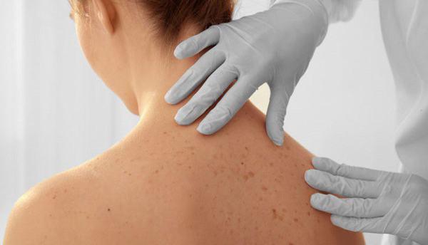 Khi có bất thường trên da, bạn cần đi khám ngay để được chẩn đoán chính xác tình trạng sức khỏe