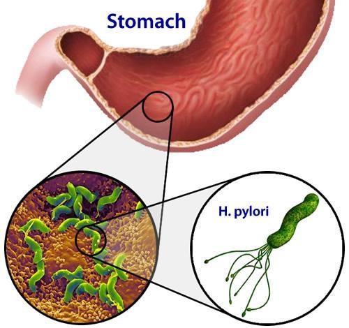 Vi khuẩn Hp là một trong những nguyên nhân chính gây nên bệnh viêm loét dạ dày tá tràng