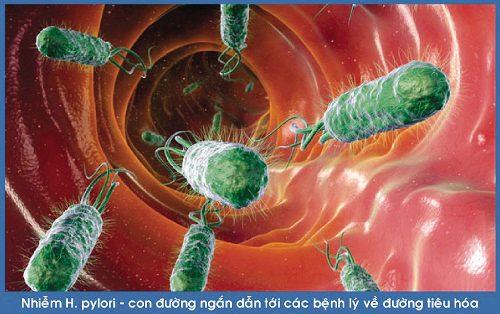 Vi khuẩn HP có thể tồn tại lâu trong dạ dày và gây bệnh