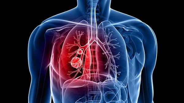 Có đến khoảng 70% bệnh nhân ung thư phổi phát hiện khi bệnh đã ở giai đoạn muộn