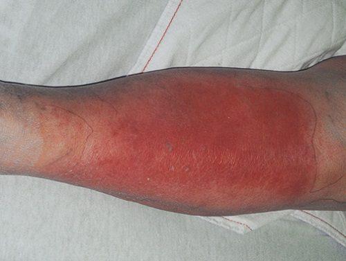 Viêm cơ lan tỏa là tình trạng thường gặp ở phụ nữ