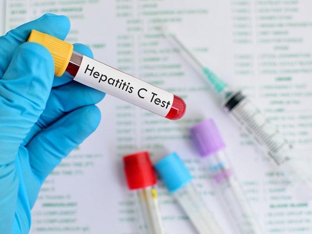 thể cấp tính viêm gan C có chữa khỏi được không