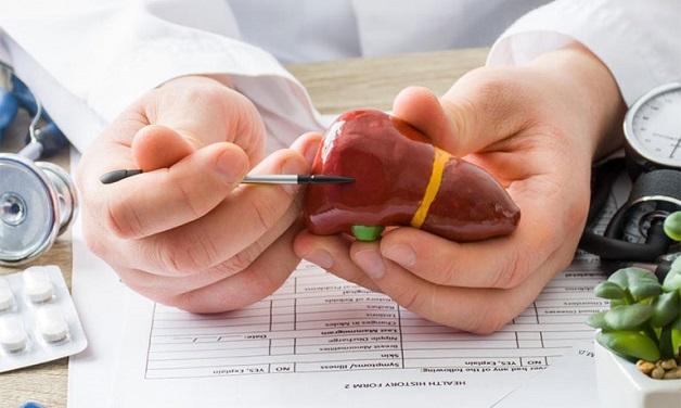 Viêm gan a có nguy hiểm không? Bệnh do virus gây ra