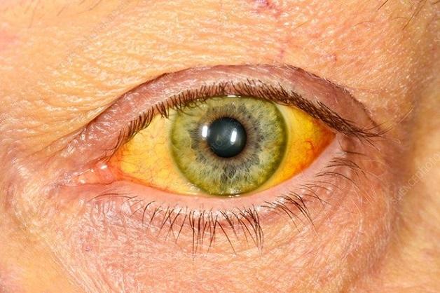 Vàng da là một trong những triệu chứng đặc trưng của bệnh viêm gan A