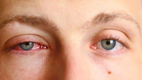 Viêm kết mạc là gì và viêm kết mạc mắt có nguy hiểm không?