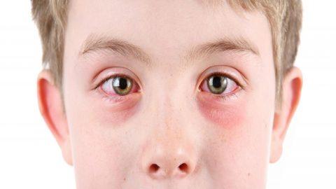 Viêm kết mạc mắt kiêng ăn gì để mau khỏi bệnh và phục hồi tốt?