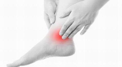 Viêm khớp chân là tình trạng thường gặp ở nhiều người