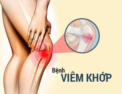 Có nhiều dạng viêm khớp chân