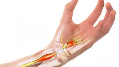 Viêm khớp cổ tay – Bệnh lý ai cũng cần hiểu rõ
