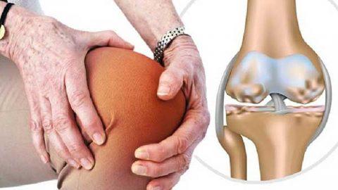 Viêm khớp đầu gối: 5 dấu hiệu cảnh báo không nên chủ quan