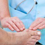Viêm khớp ngón chân và 5 dấu hiệu nhận biết của bệnh