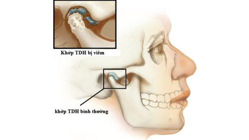 Viêm khớp thái dương hàm hay còn được gọi là chứng rối loạn khớp thái dương hàm.
