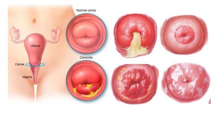 Dù là căn bệnh lành tính nhưng nếu không được điều trị kịp thời, viêm lộ tuyến cổ tử cung vẫn gây ra những biến chứng nguy hiểm.