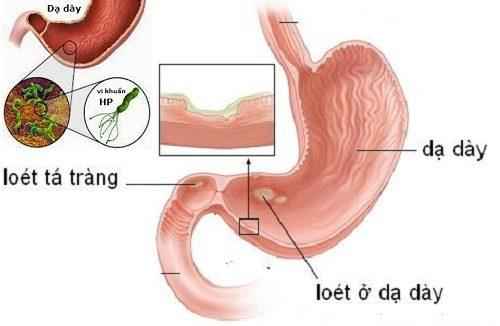 Nguyên nhân chủ yếu gây viêm loét dạ dày tá tràng là do vi khuẩn HP