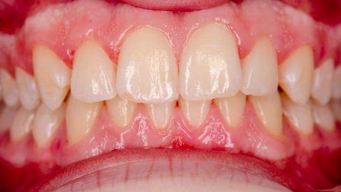Dấu hiệu viêm nha chu cảnh báo vấn đề răng miệng