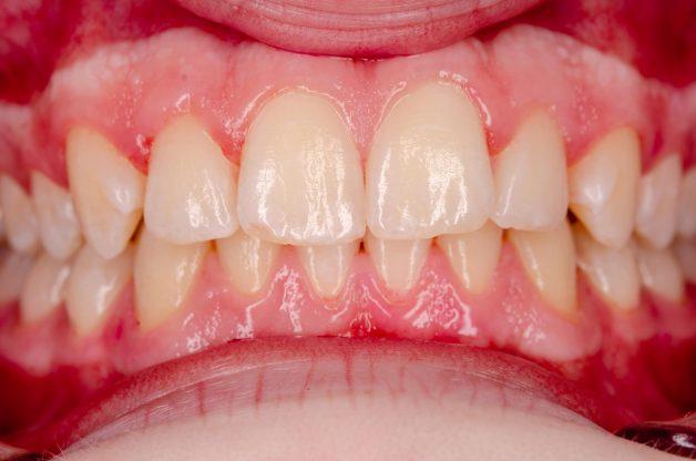 Viêm nha chu là tình trạng các tổ chức quanh răng bị viêm nhiễm, dẫn dến cấu trúc nâng đỡ răng bị ảnh hưởng và răng mất kết nối với tổ chức này