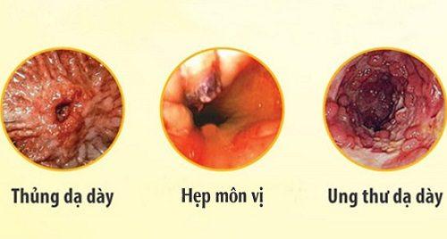 Viêm niêm mạc hang vị dạ dày là bệnh lý nguy hiểm và có thể gây nhiều biến chứng
