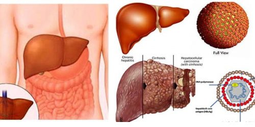 Viêm phúc mạc nhiễm khuẩn tiên phát thường gặp ở bệnh nhân xơ gan và bệnh nhân gan giai đoạn cuối.
