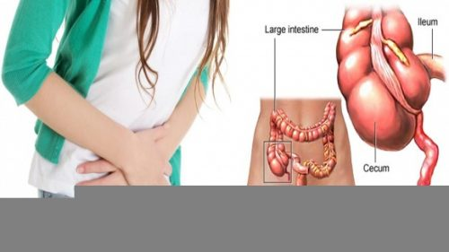 Người bệnh có thể bị viêm phúc mạc hoặc áp xe ruột thừa