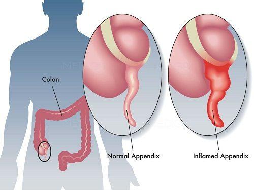 Viêm ruột thừa là một cấp cứu ngoại khoa thường gặp.
