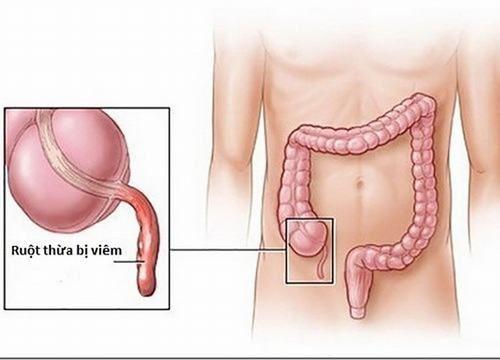 Viêm ruột thừa là một cấp cứu ngoại khoa thường gặp, nguy hiểm cần được điều trị sớm