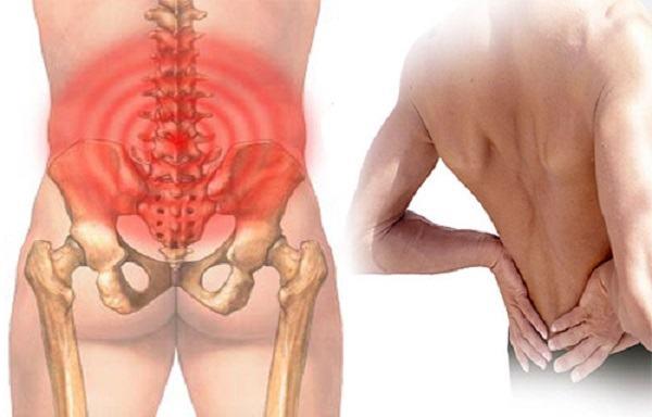Khi bị viêm xương chậu, chị em sẽ cảm thấy đau vùng thắt lưng, đau khi giao hợp