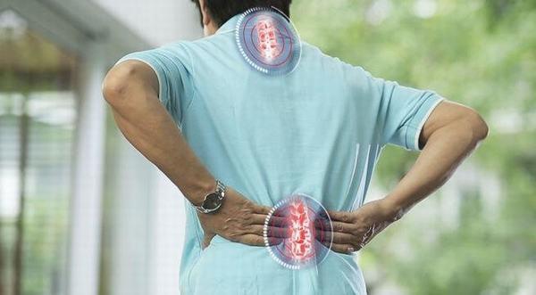 Người bệnh thường có cảm giác đau lưng và các vị trí bị vôi hóa dữ dội, tê cứng xương khớp