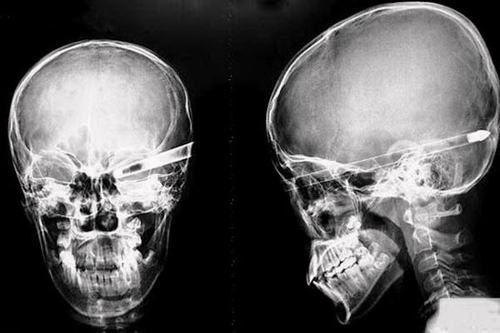 Chụp X Quang Sọ Não và Những BIẾN ĐỔI bệnh lý trên phim X quang 1