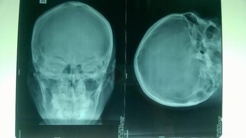 Chụp X Quang Sọ Não và Những BIẾN ĐỔI bệnh lý trên phim X quang 3