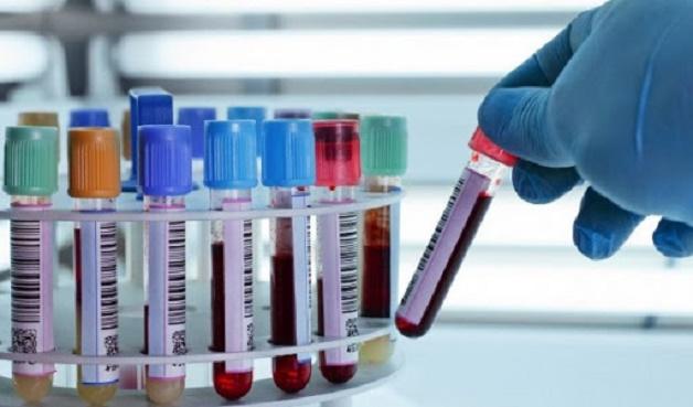 Trước khi thực hiện, người bệnh sẽ được các bác sĩ tư vấn cụ thể và thực hiện những xét nghiệm nội tiết cần thiết.