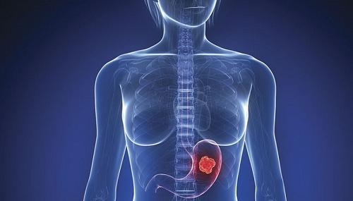 Ung thư dạ dày đang có xu hướng gia tăng và trẻ hóa