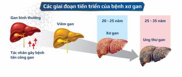 Xơ gan bệnh học có thể tiến triển thành ung thư gan