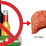 Xơ gan rượu nguy hiểm như thế nào và cách phòng ngừa