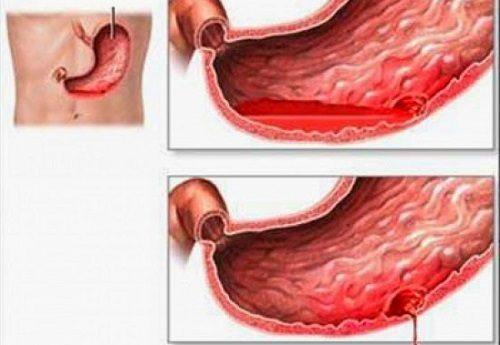 Xuất huyết dạ dày là biến chứng nguy hiểm của viêm loét dạ dày không được điều trị kịp thời và triệt để