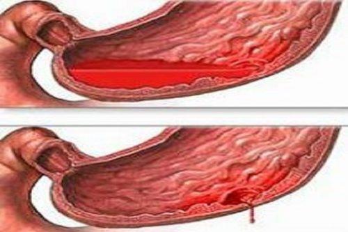 Xuất huyết tiêu hoá là hiện tượng máu thoát ra khỏi lòng mạch chảy vào ống tiêu hoá, biểu hiện lâm sàng là nôn ra máu đi ngoài ra máu.