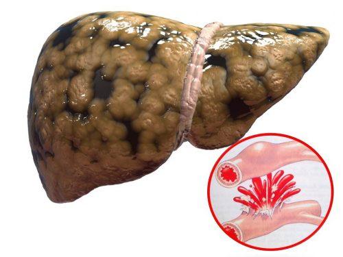 Xuất huyết tiêu hóa trên bệnh nhân xơ gan nếu không xử trí sớm và đúng cách có thể khiến người bệnh tử vong rất nhanh.