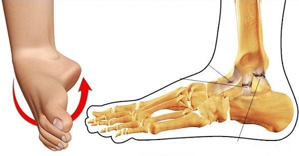 Xương bàn chân dễ bị tổn thương do té ngã, trẹo chân, tai nạn...