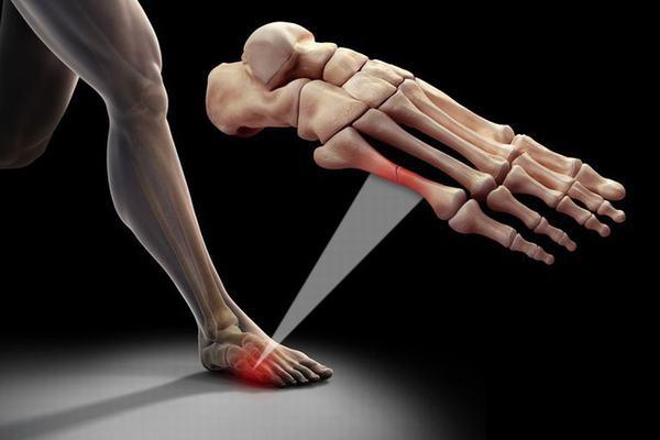Gãy xương bàn chân sẽ ảnh hưởng tới chức năng vận động, đi lại của cơ thể