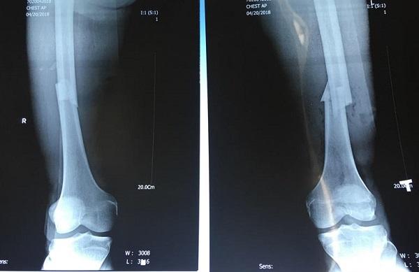 Xương chày là xương quan trọng ở chi dưới và rất dễ bị gãy
