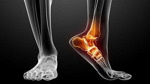 Cổ chân là điểm nối giữa chân và bàn chân.