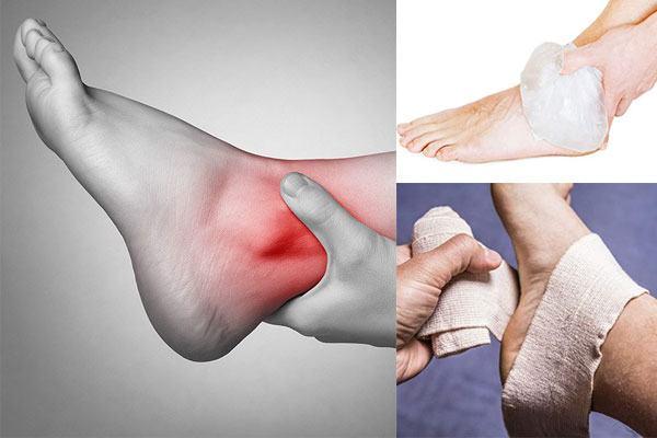 Xương cổ chân dễ bị các chấn thương như bong gân, nứt gãy