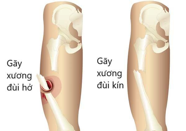 Có nhiều kiểu gãy xương đùi do va đập, tai nạn...