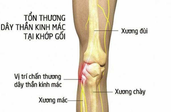 Xương mác là xương dài, nhỏ, nằm ở ngoài cẳng chân và ngoài xương chày